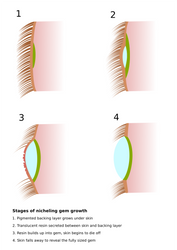 Niche: Gem growth