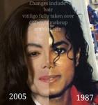 Michael Jackson Support