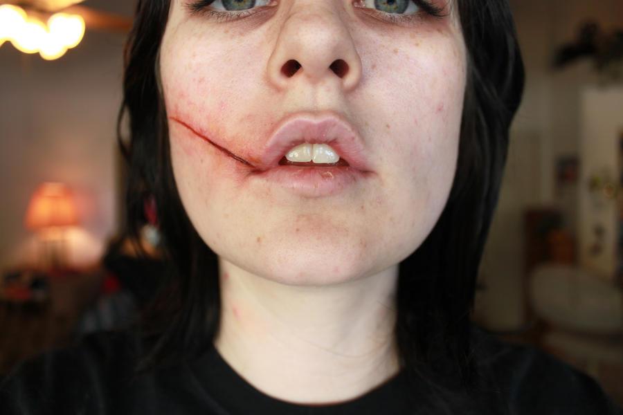 Celebrity facial scars