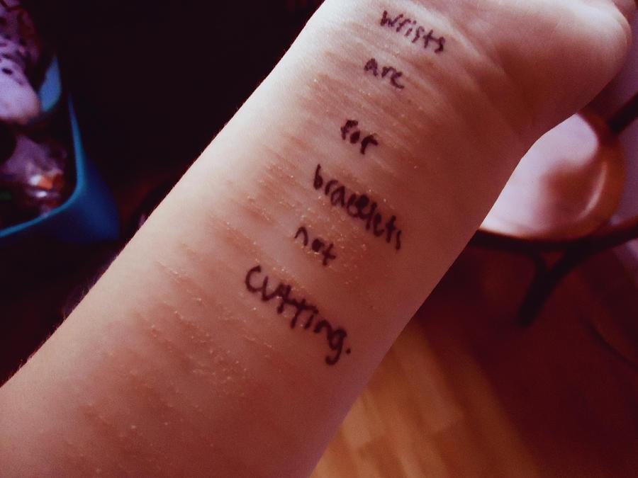 Slit Wrists