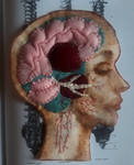 disected head