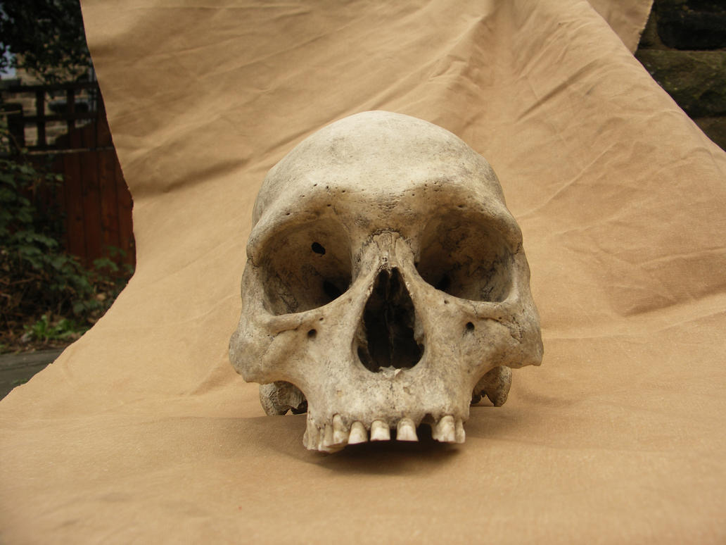 Real human skull 01 stock by Pronus