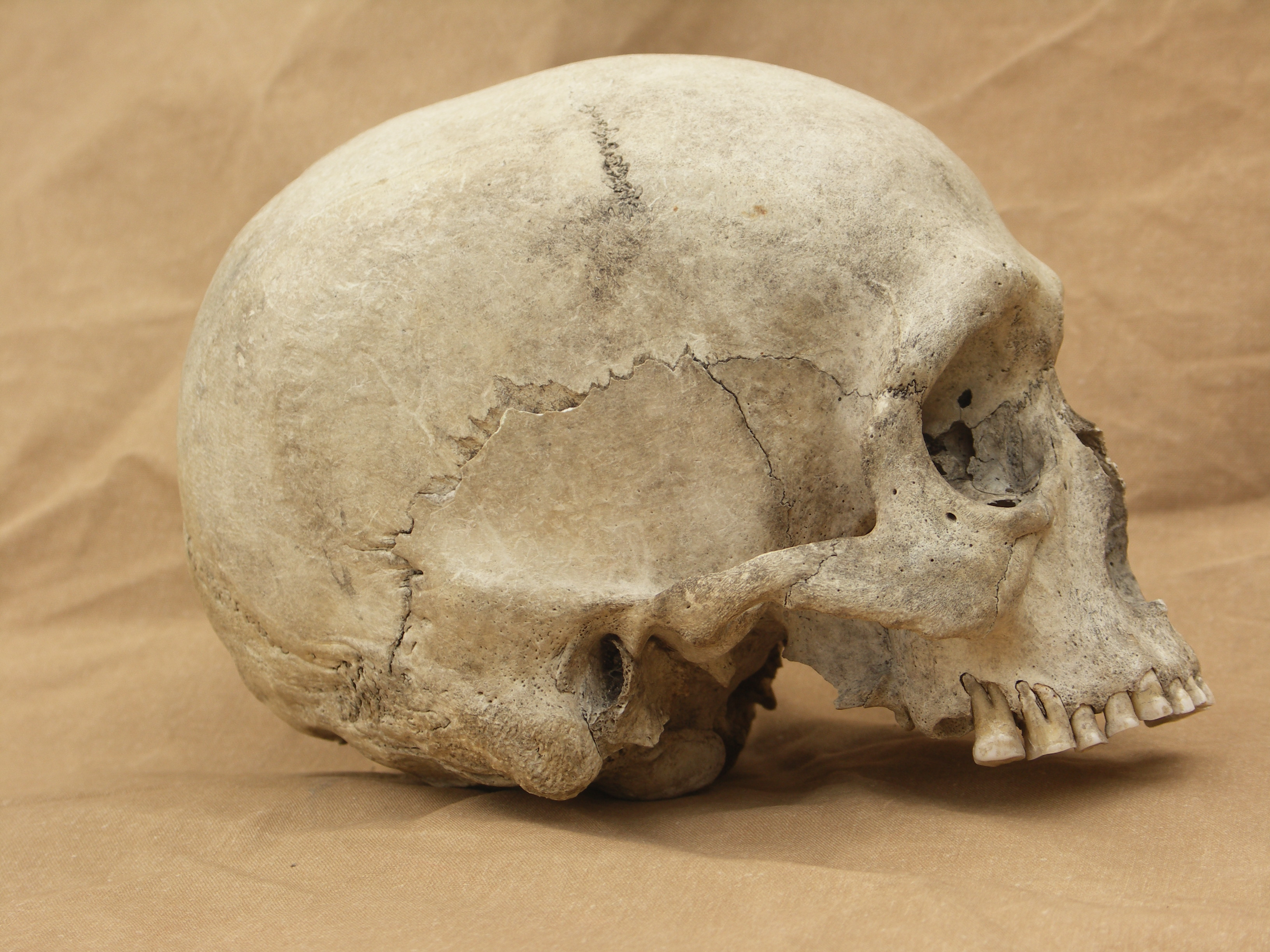 Human skull 08 jpeg by Pronus