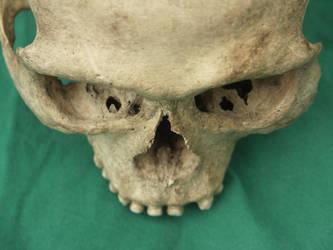 Human Skull 27 by Pronus