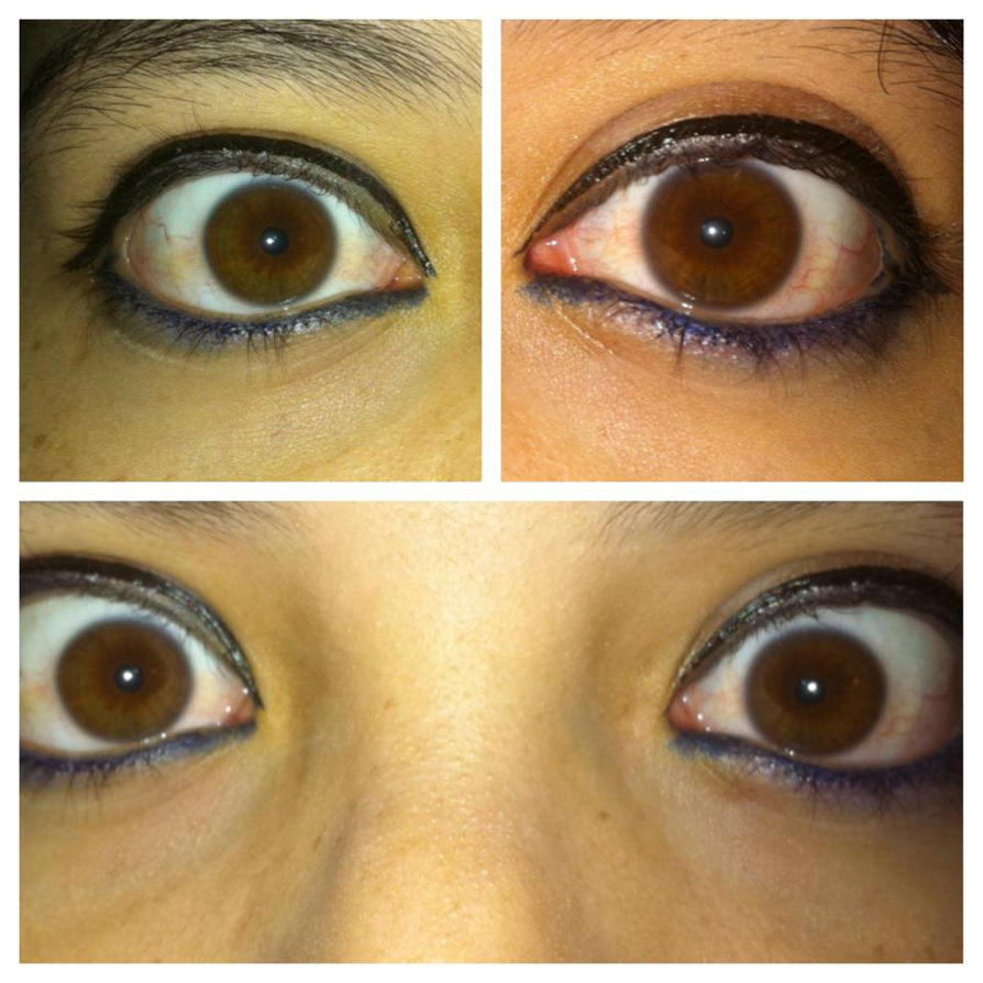 Heterochromia Eyes Different Shades Of Brown By