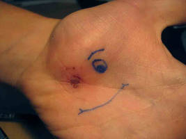 Wounded Smiley