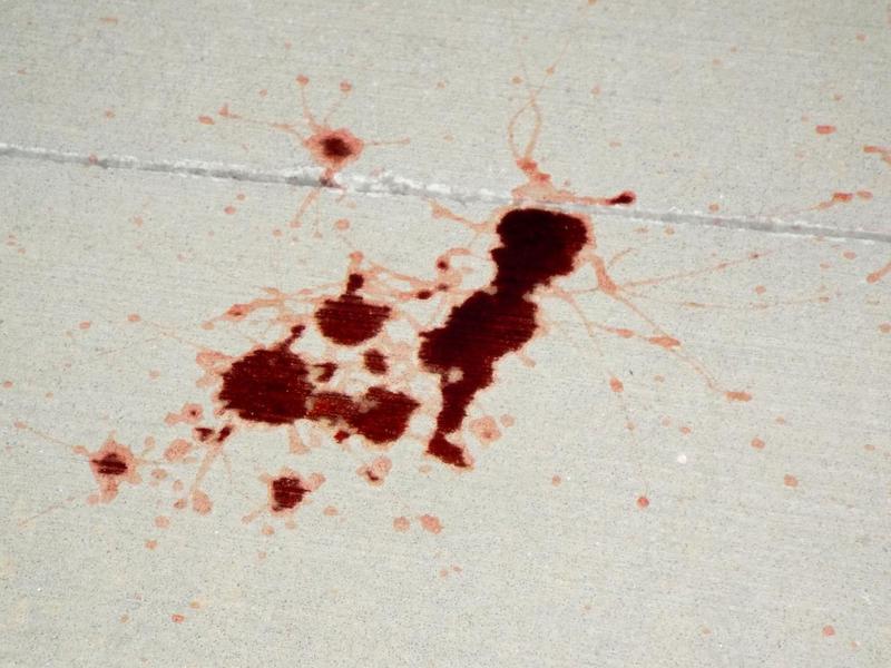 Stock: Blood Spatter 01 by LissaMonster