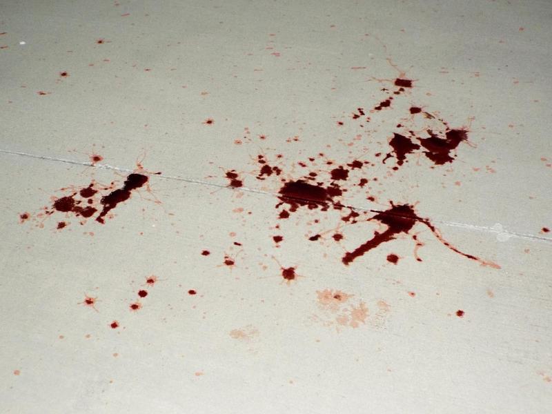 Stock: Blood Spatter 02 by LissaMonster