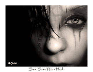 Some Scars Never Heal