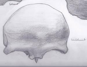 coronal bone