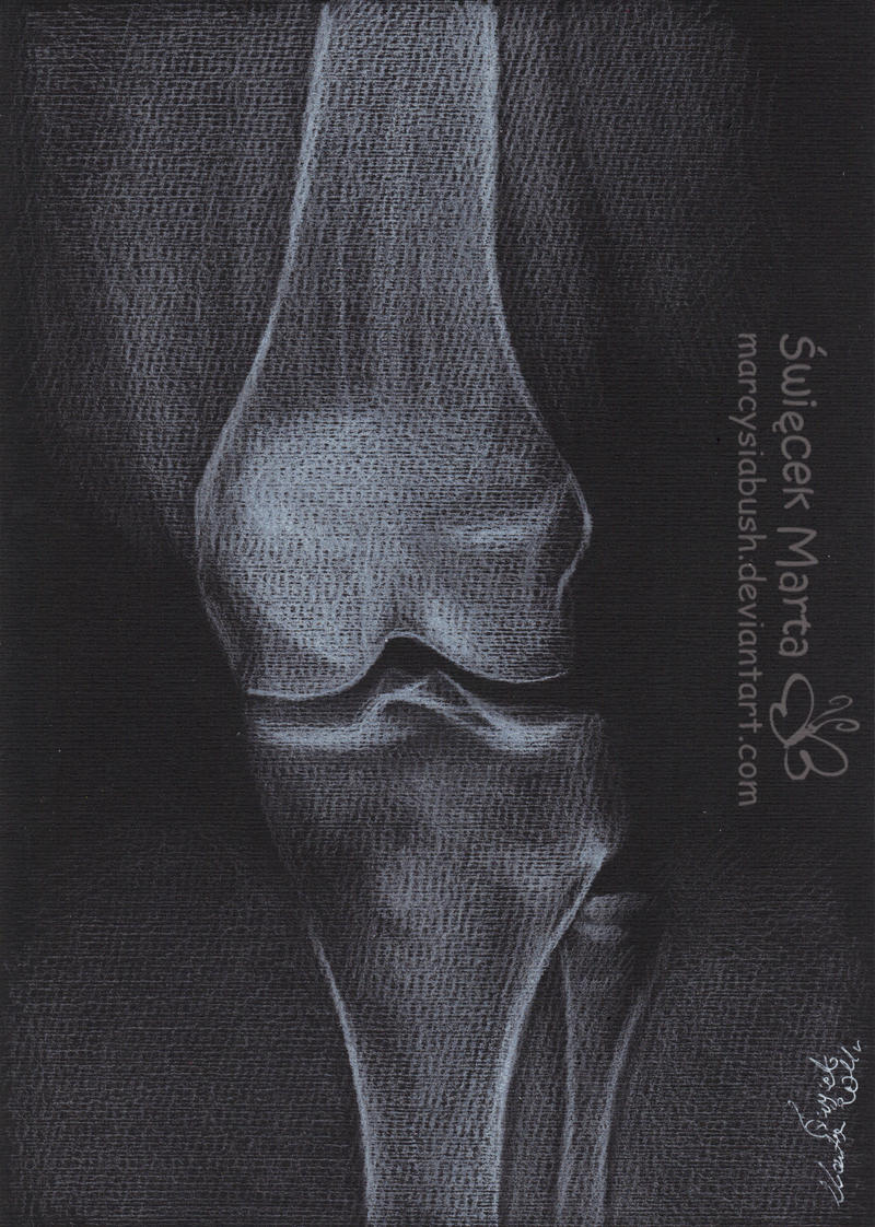 X-Ray knee by Marcysiabush