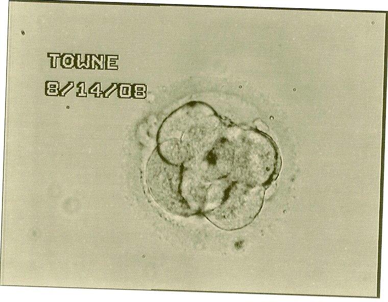 IVF embryo