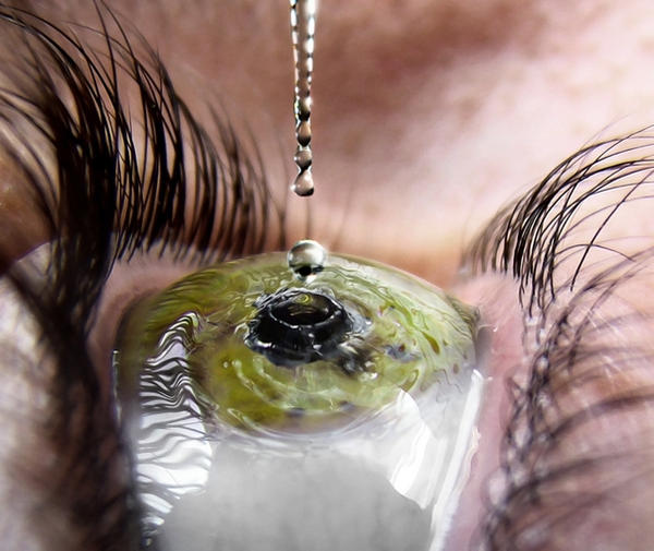 Eye Drop by AnthonyHearsey