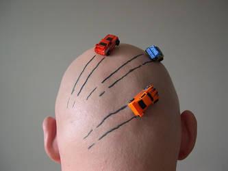 Bald cars