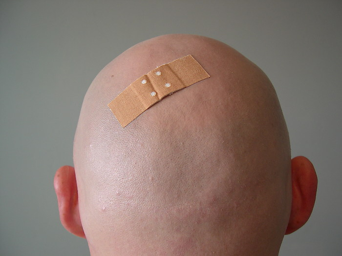 bald band aid by steven6773