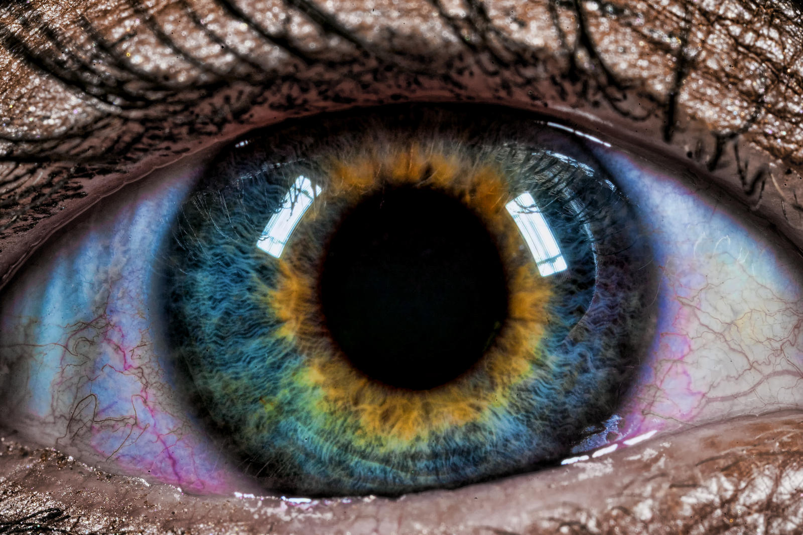 how to get central heterochromia