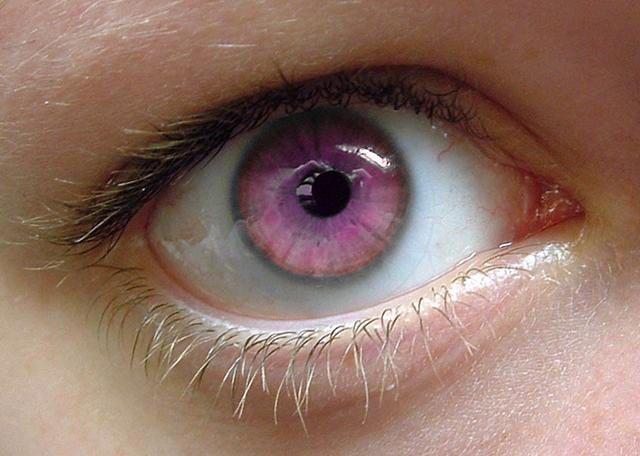 Unusual Natural Eye Color