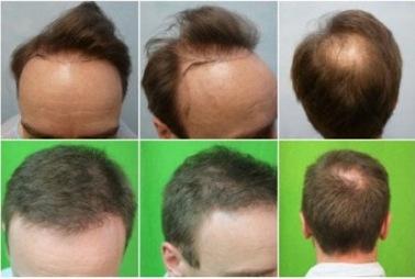Utah Hair Transplant by scottgriffin