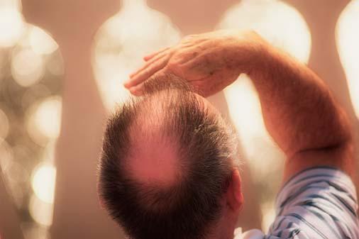 Utah Hair Transplant Specialist by scottgriffin