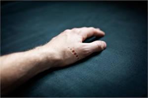 -- hurt -- by Torvon