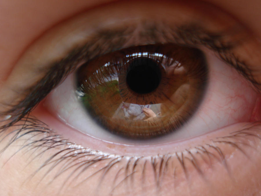 If you re in this category  Brown Eyes Iris