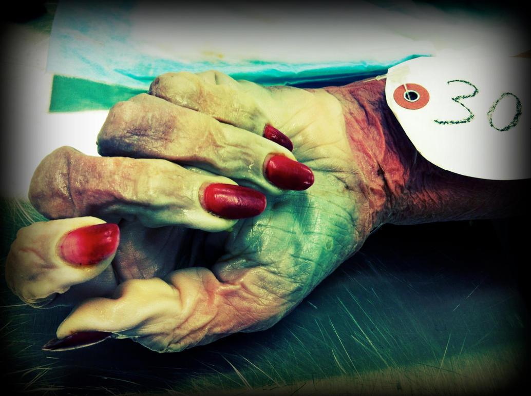Cadaveric Hand Detail by ycrad64