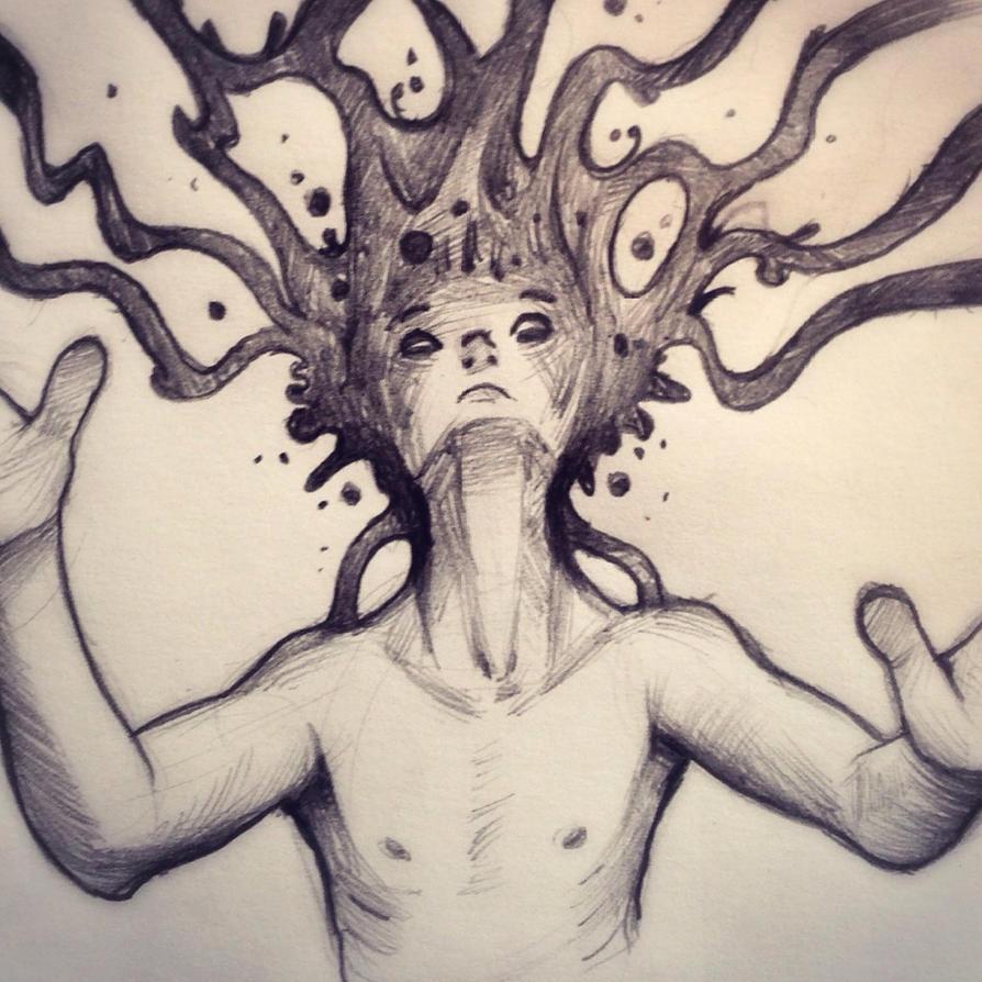 Migraine by RhythmAx
