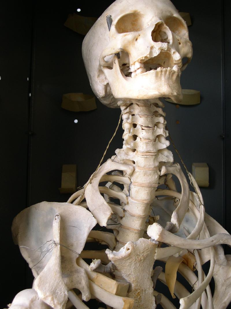 bonestock2