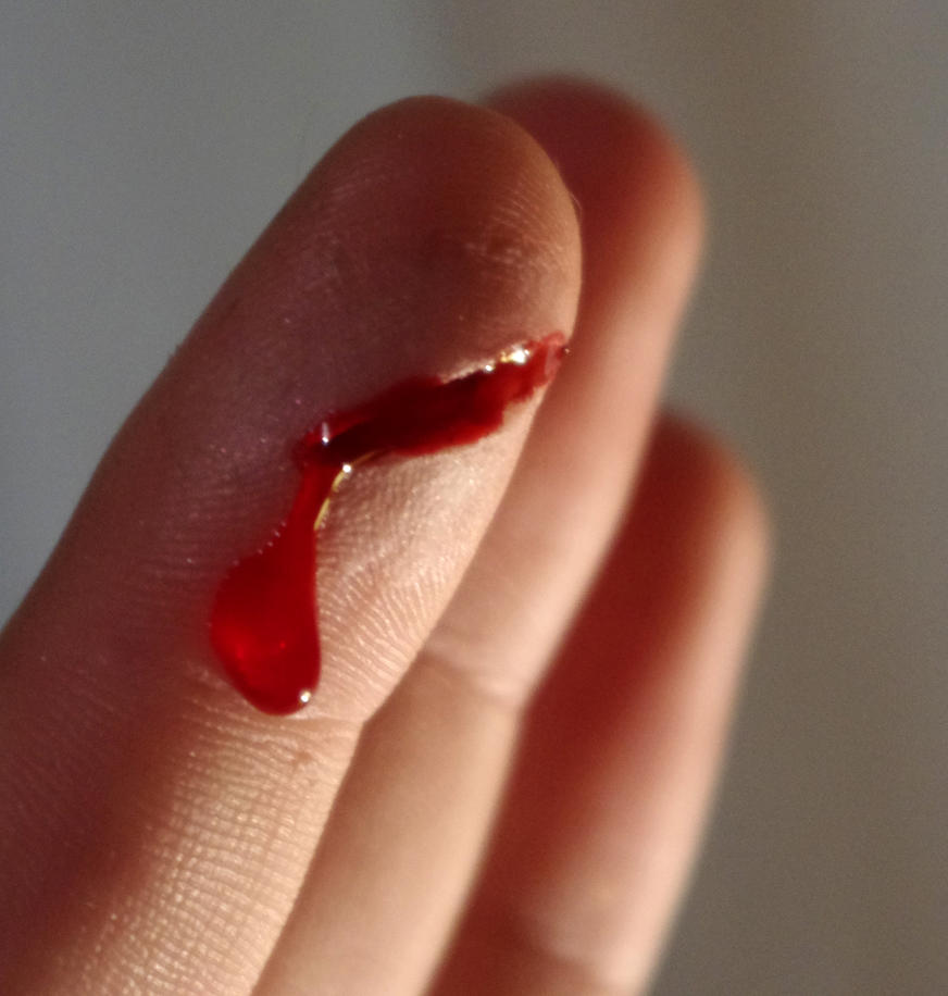 paper cuts on finger
