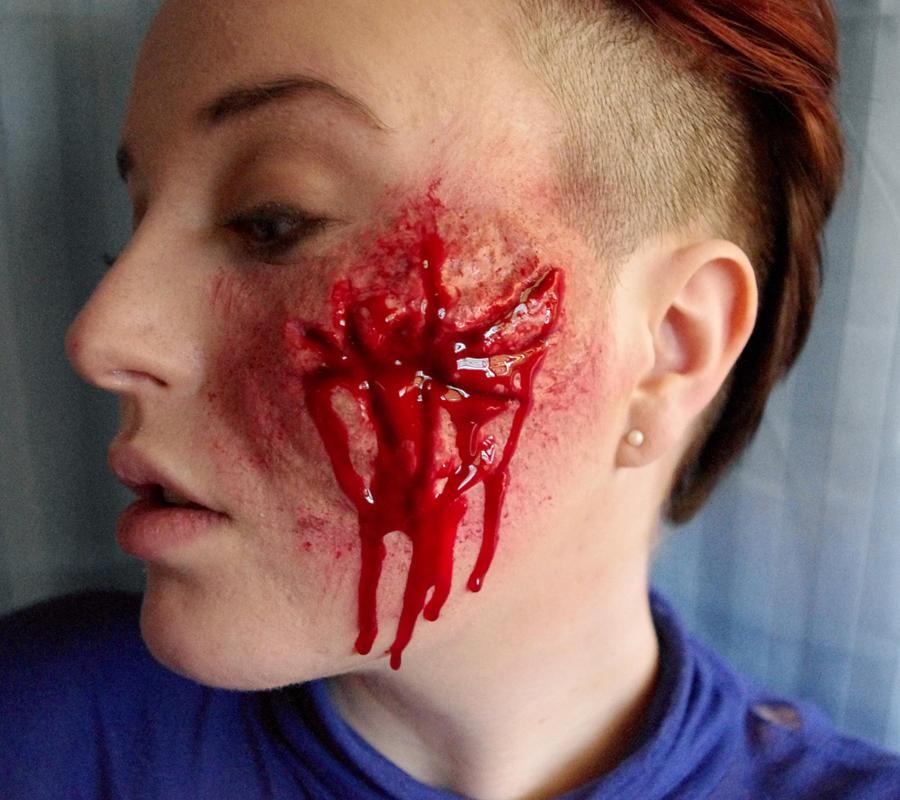 Facial Wounds 104