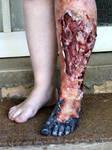 Ganrenous Leg