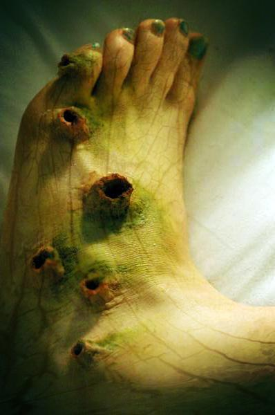 Over 100 Different Types Of Fungi Found On The Human Foot