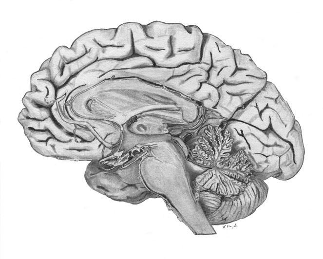 half a brain by greatzombiejesus