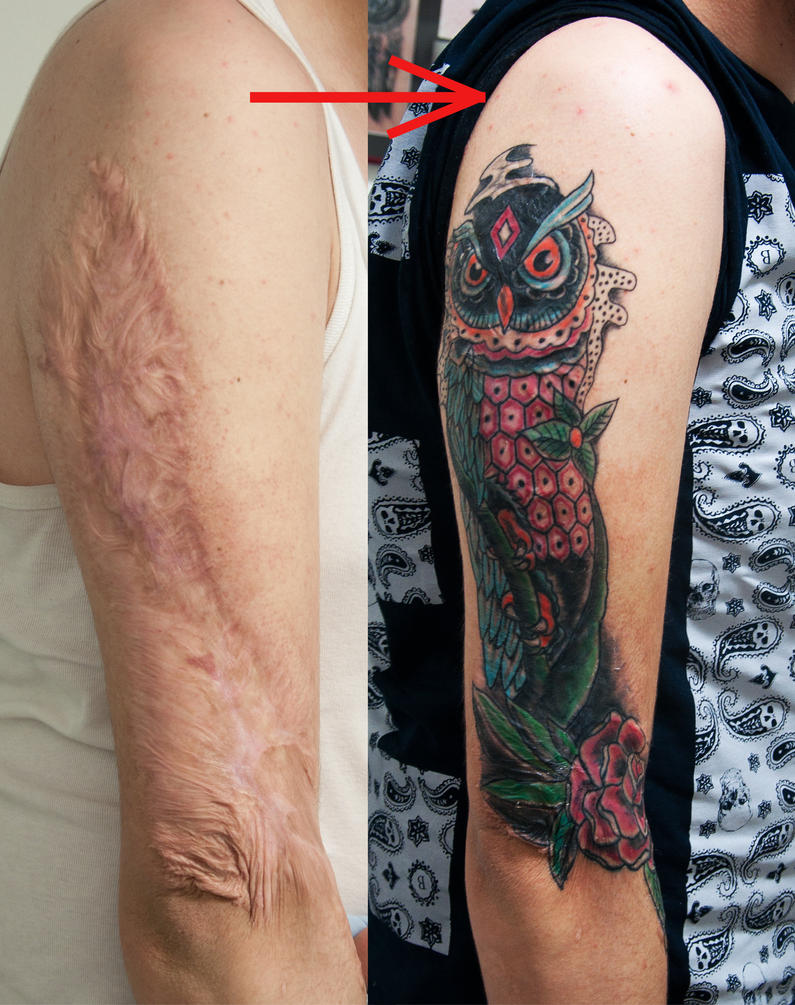 Burn scar cover healed by tattoozone on deviantart for Scar tattoo cover up