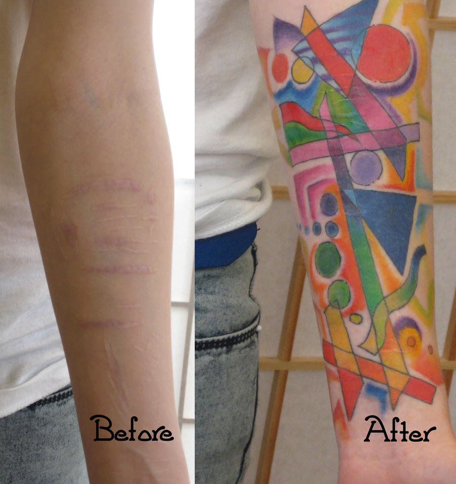 Abstract scar cover up by madamelazonga on deviantart for Scar tattoo cover up