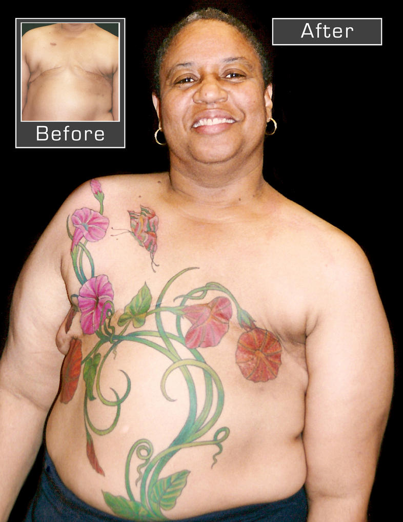 Mastectomy cover-up. by madamelazonga