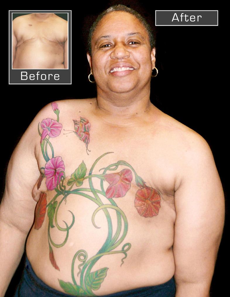 Mastectomy cover-up. by madamelazonga