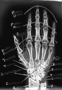 Anatomy: Ossa Carpi, Ossa metacarpi, Ossa Digit...
