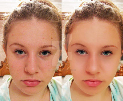 Before After Retouching by desairavi90