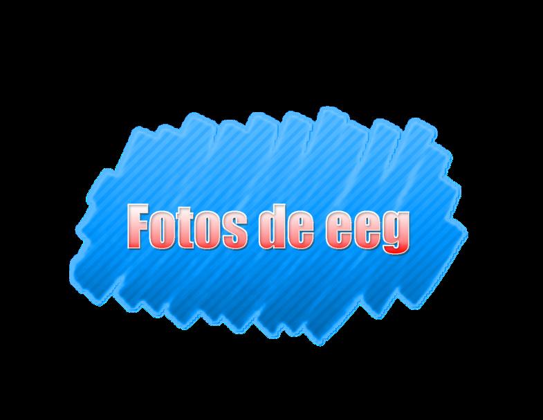 fotos de eeg by Andreeiitaediiciones