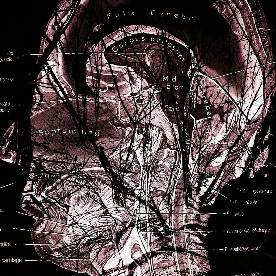 Tree Anatomy  by Justeatin-Aburrito