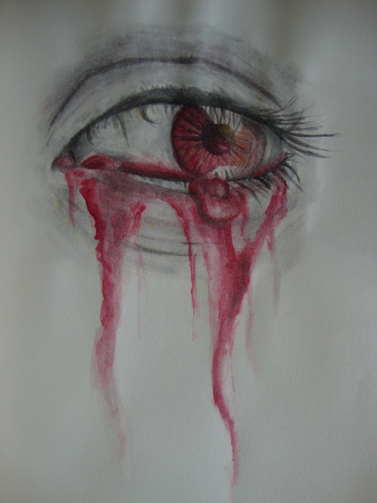 Bleeding Eye by Link-of-the-twilight
