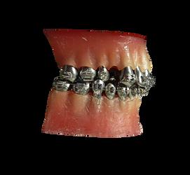 Metal Teeth