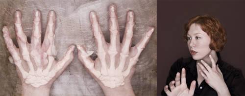 Mano Osteo-chondromatosis by marcyintellect