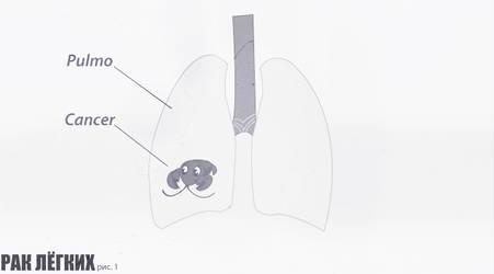 Diagrama_de_los_pulmones_canse by Rofled
