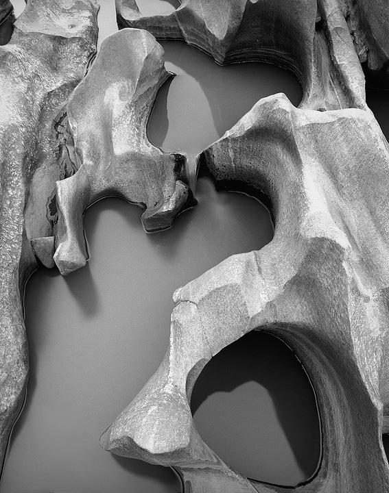 pelvic erosion by grevys