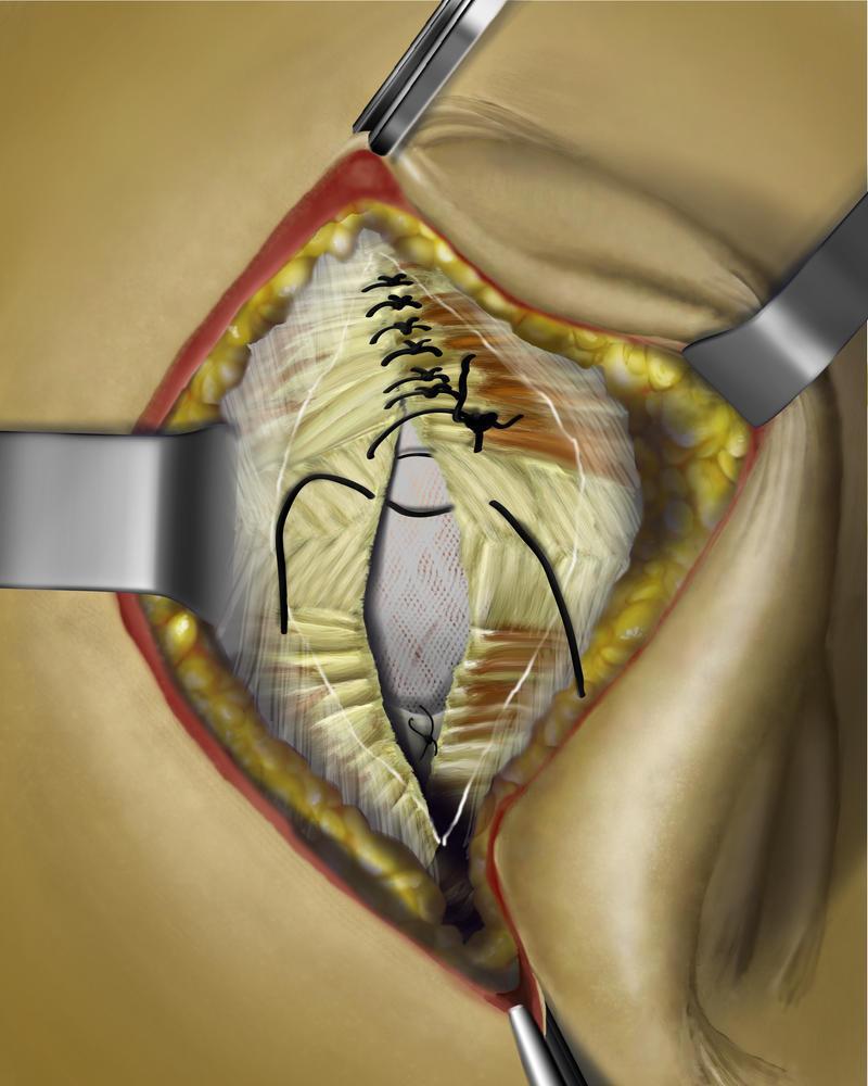 Umbilical Hernia Repair Step 5 By Priapism4art On Deviantart