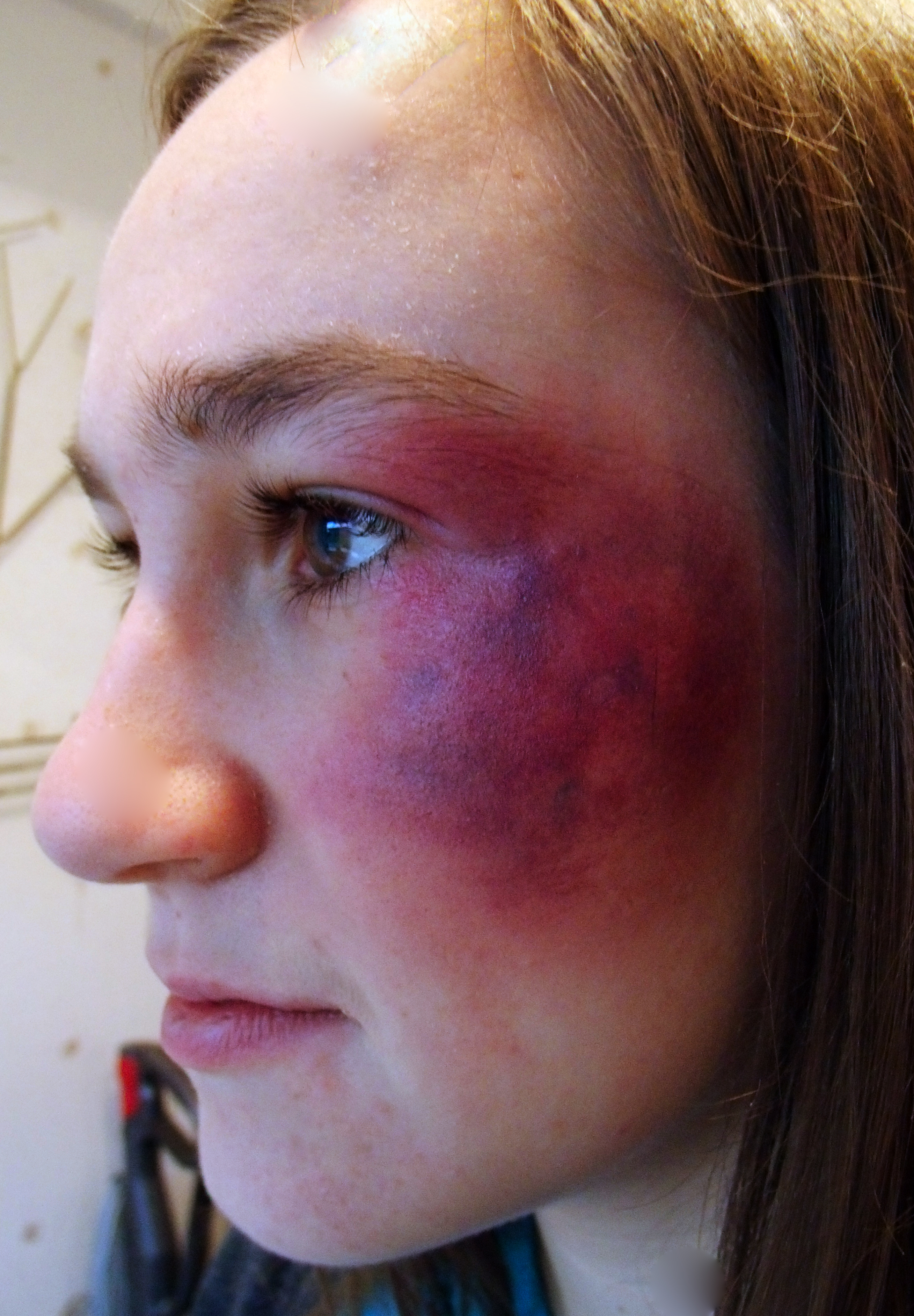 Facial Bruises 28