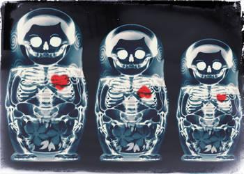 Nesting Doll X-ray by aligulec