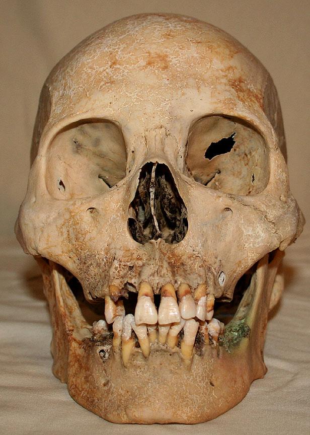 Skull Stock Photo 01